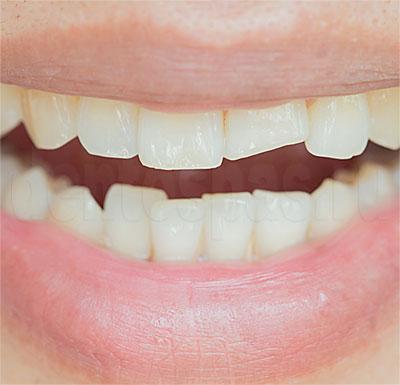 Зубы, пострадавшие от бруксизма