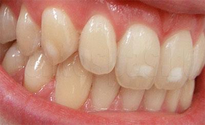 Зубы с ослабленной эмалью