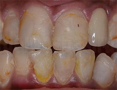Осложнения после ортодонтического лечения