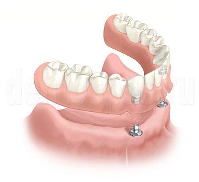 Протезирование зубов: полезная информация и рекомендации