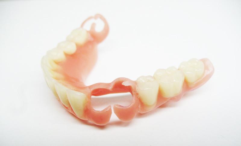 Съемные протезы Quadrotti для зубов